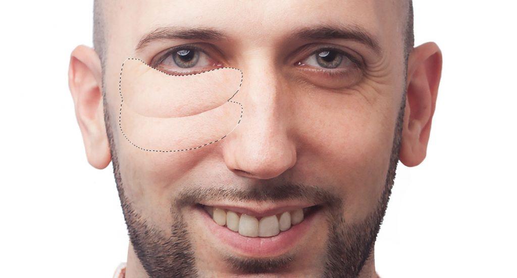 eliminar ojeras en photoshop