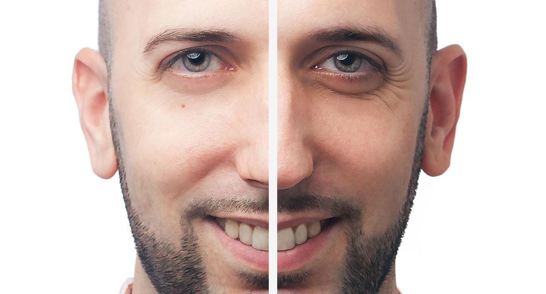 como quitar el morado de las ojeras